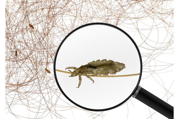 Magnifying glass focusing on lice with lice and hair in the background
